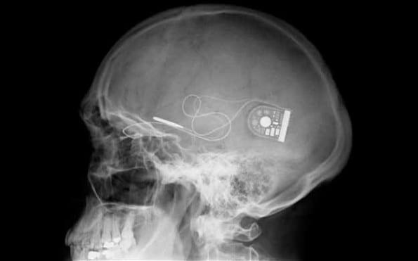Door oogimplantaten in de hersenen kunnen blinden weer zien