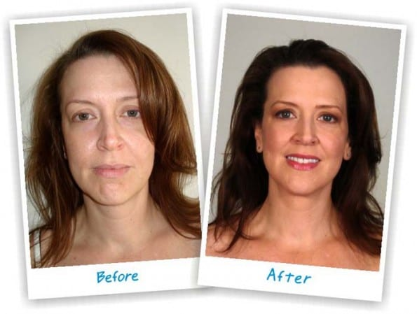 wrinkle-cream-case-study-before-after