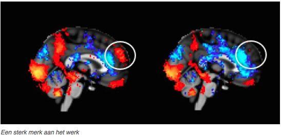Bron: website Neurensics